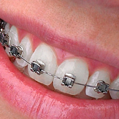Beugel (orthodontie)
